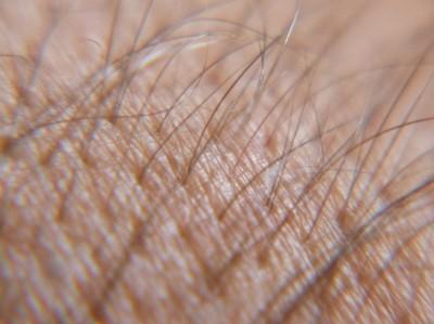 Hairy Skin.