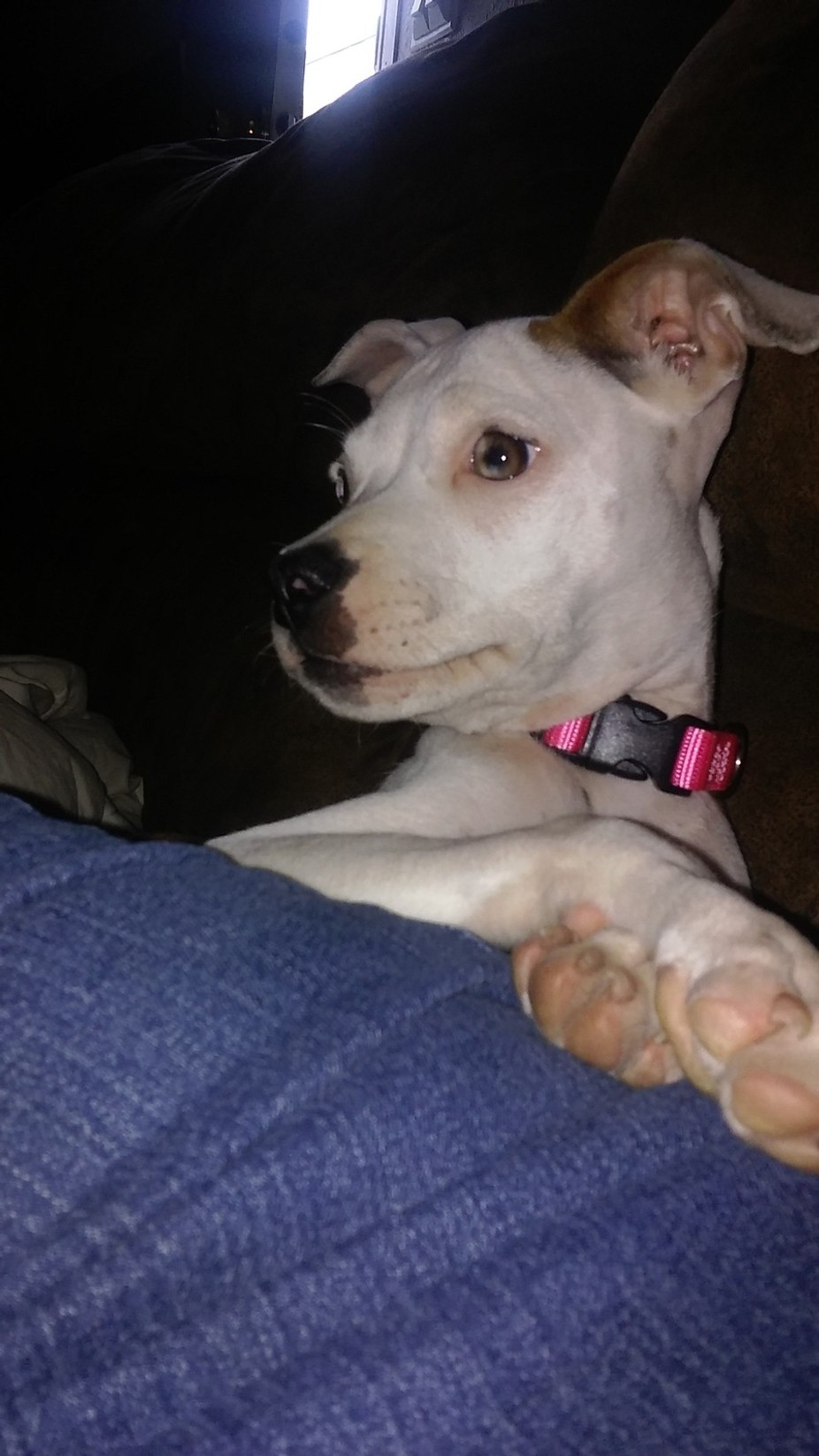 Our rescue Zoe. We rescued her and we found out someone poured battery acid down her back. Amazin...