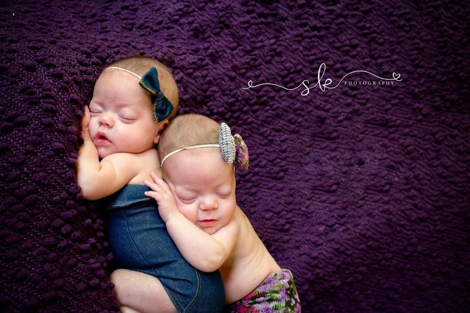 Twins by suzankiernicki - Baby Face Photo Contest