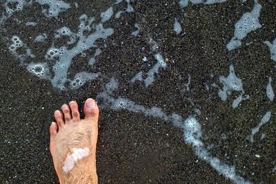 Man's legs with vitiligo on the sand beach