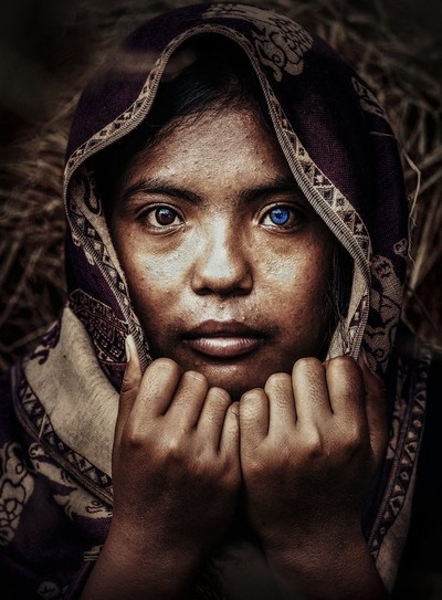 Bicolor Soulful Eyes