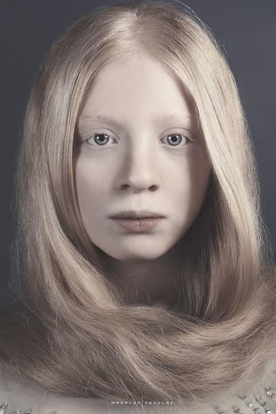 Beautiful albino girl