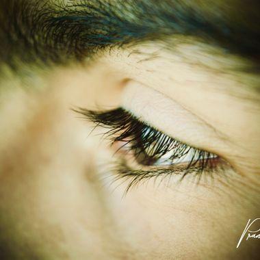 An Eye!