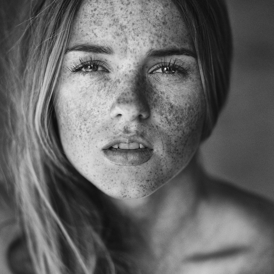 We Love Freckles Photo Contest Winners