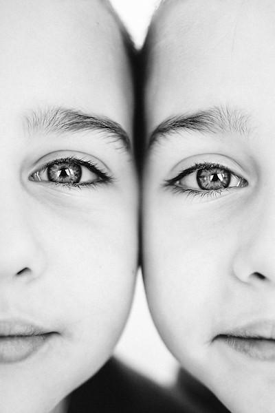 Identical Twins, Eye to Eye